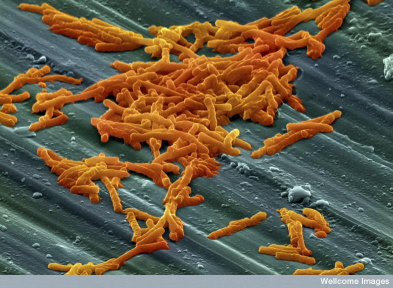 C. difficile bacteria, colour enhanced. Credit: Annie Cavanagh, Wellcome Images