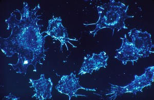 The study has opened a new line of research into understanding this deadly cancer